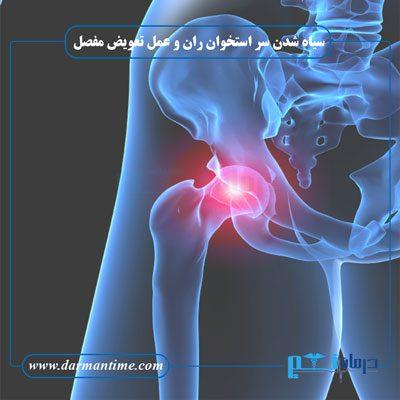 سیاه شدن سر استخوان ران و عمل تعویض مفصل