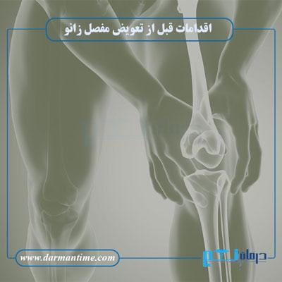 آمادگی پیش از تعویض مفصل زانو