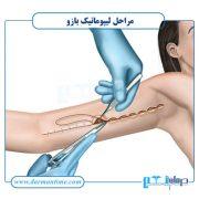 مراحل لیپوساکشن بازو