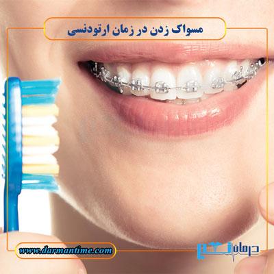 ارتودنسی دندان و مسواک زدن