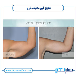 تصاویر لیپوماتیک بازو