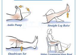 ورزش های بعد از تعویض مفصل زانو
