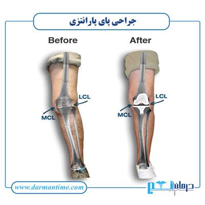 هزینه جراحی پای پارنتزی