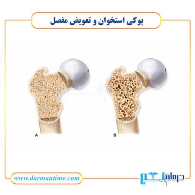 پوکی استخوان و تعویض مفصل