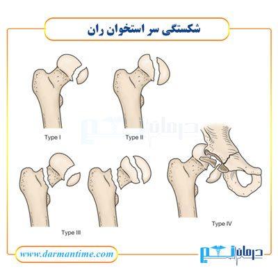شکستگی سر استخوان ران