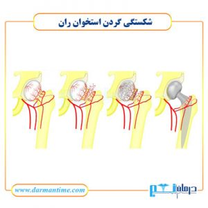 شکستگی گردن استخوان ران