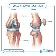 عوارض احتمالی بعد از آرتروپلاستی زانو