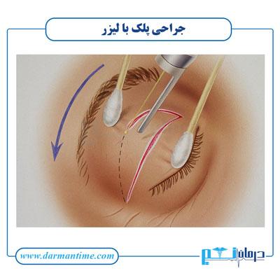 جراحی پلک با لیزر