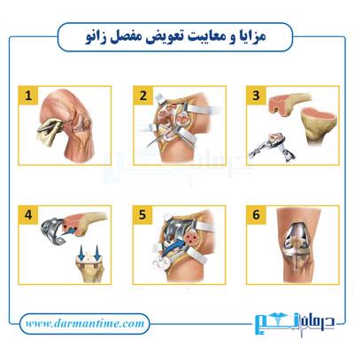 مزایای تعویض مفصل زانو