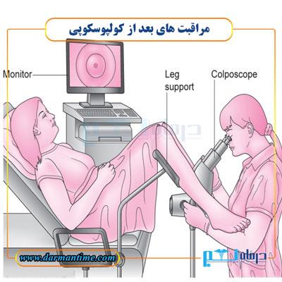 مراقبت های بعد از کولپوسکوپی