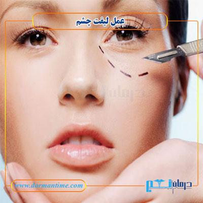 جراحی زیبایی لیفت چشم
