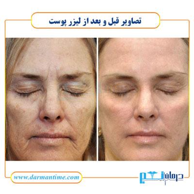 عکس قبل و بعد از لیزر پوست