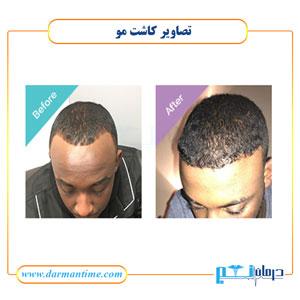 کاشت مو در ارومیه